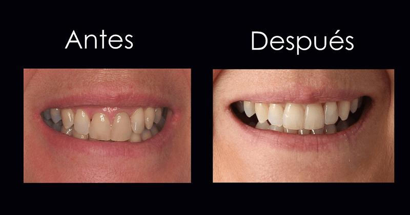 Sonrisas 10. Caso XXVI Nunca sonrío en las fotos porque mis dientes se ven amarillos y demasiado grandes