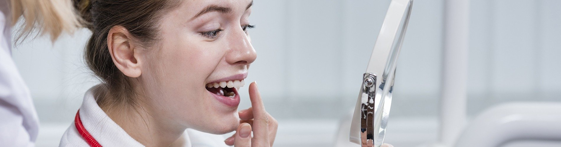 Composites y  la estética dental