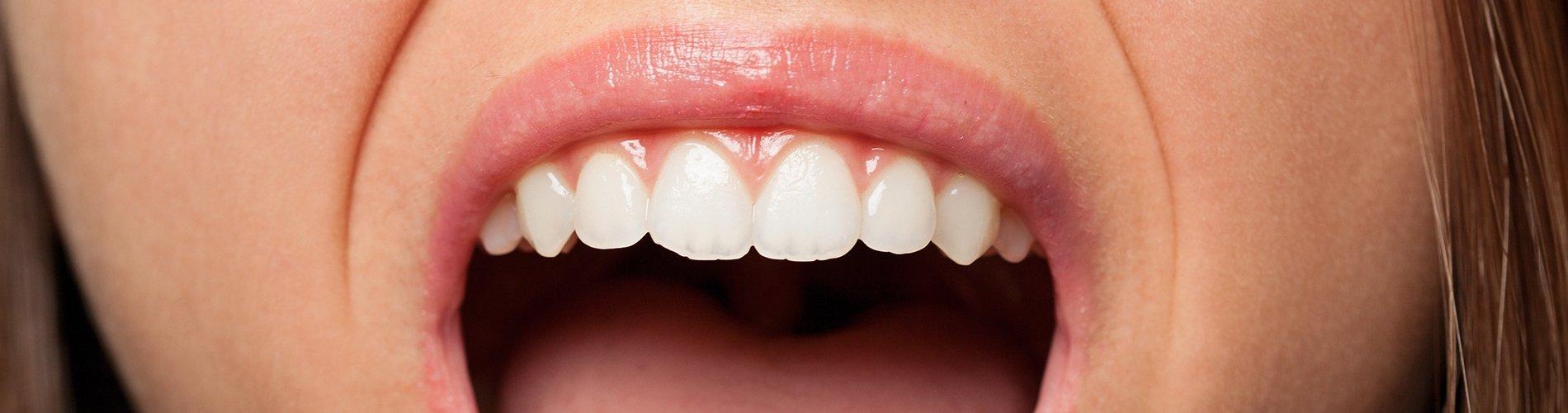 ¿Cómo reducir la inflamación de las encías?