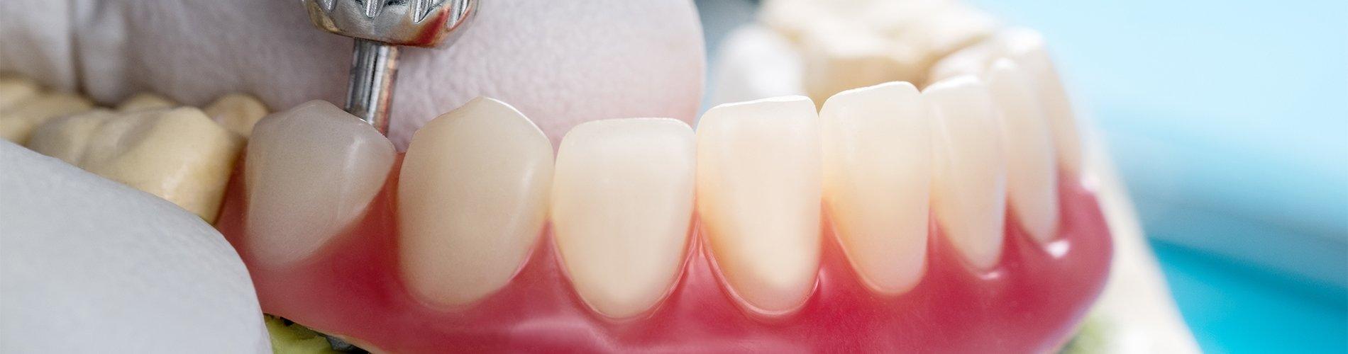 Soluciones para la pérdida de piezas dentales