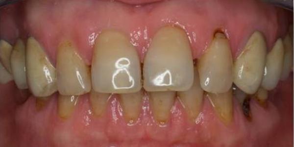 dientes-separados-oscuros-encias-antes