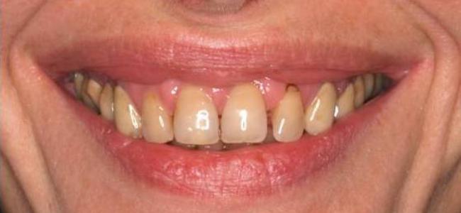 dientes-separados-oscuros-sonrisa-antes