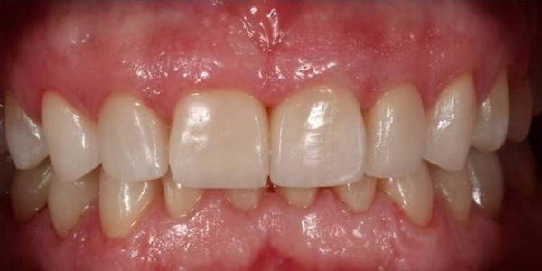 duele-mandibula-dientes-antes