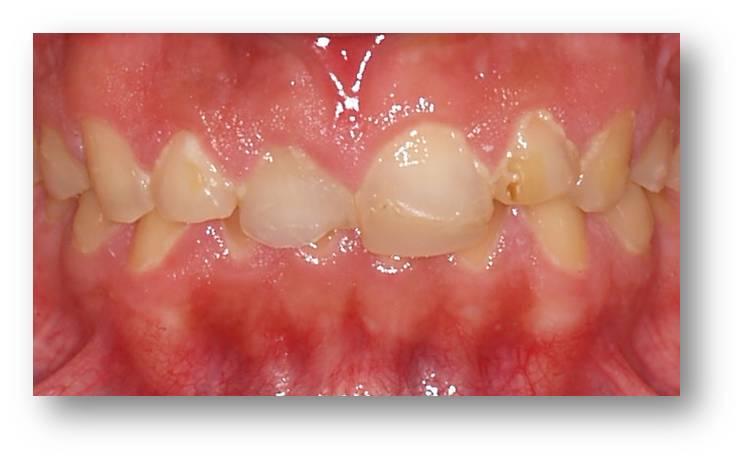 dientes-deteriorados-sensibilidad-halitosis-encias-antes