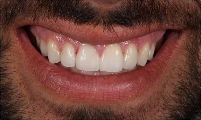 dientes-deteriorados-sensibilidad-halitosis-sonrisa-despues