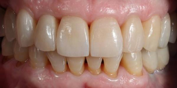 dientes-largos-separados-moviles-encias-despues