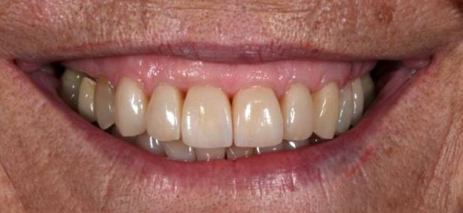 dientes-largos-separados-moviles-sonrisa-despues