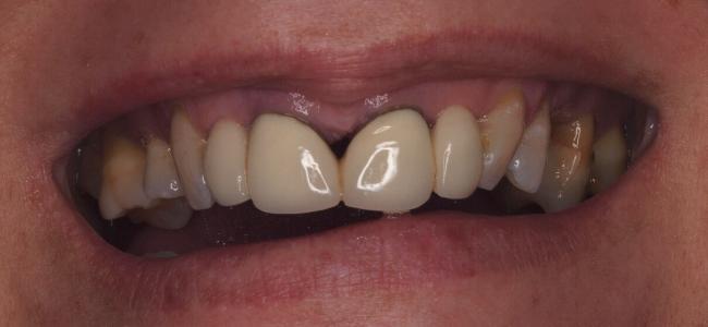 sensibilidad-dientes-antes