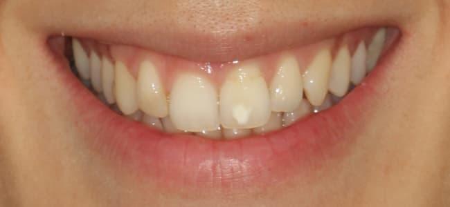 ortodoncia-invisible-dientes-blancos-antes