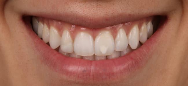 Ortodoncia invisible y dientes blancos