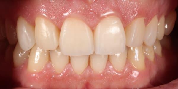 rotura-dientes-anterosuperiores-encias-despues