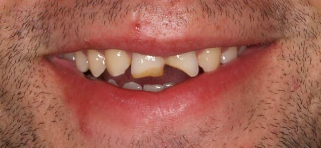 rotura-dientes-anterosuperiores-sonrisa-antes