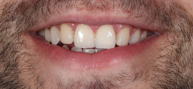 Rotura de los dientes anterosuperiores