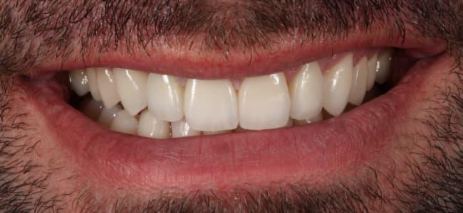 Puente dental y margen metálico