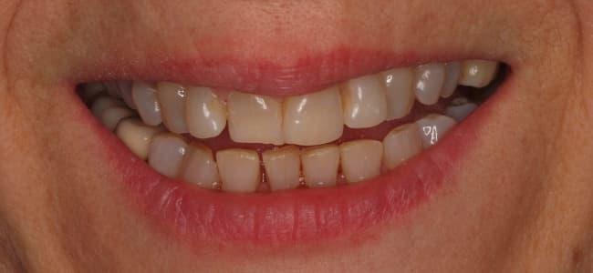 dientes-superiores-salidos-oscuros-sonrisa-antes