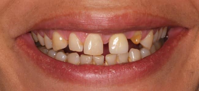 Rotura de diente anterior