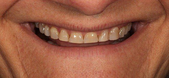 dientes cortos antes