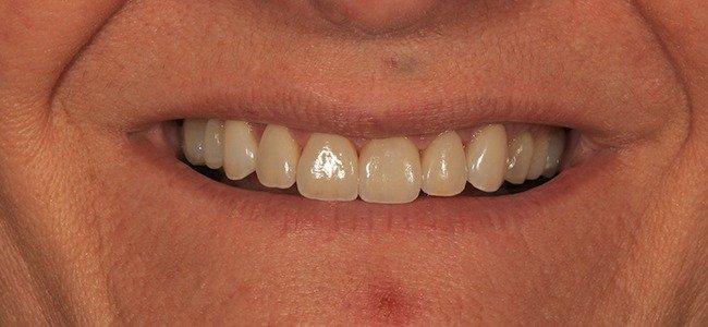 dientes cortos solución