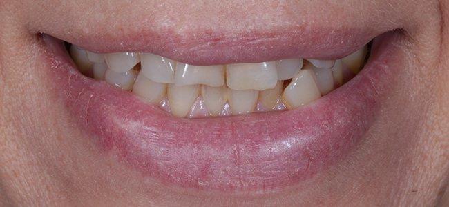 dientes desplazados antes curull
