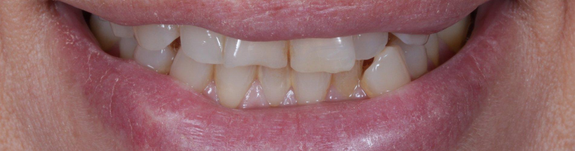 Mis dientes se están desplazando