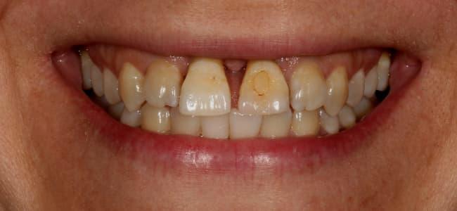 dientes-desplazados-delante-sonrisa-antes